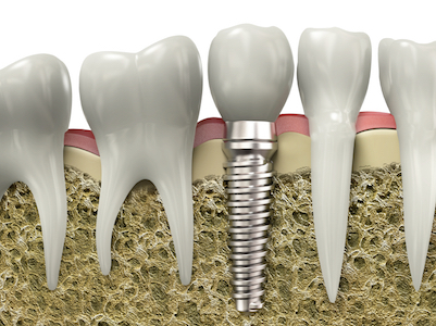 dental-implants-can-be-used-to-replace-single-teeth-or-permanently-anchor-a-full-mouth-denture