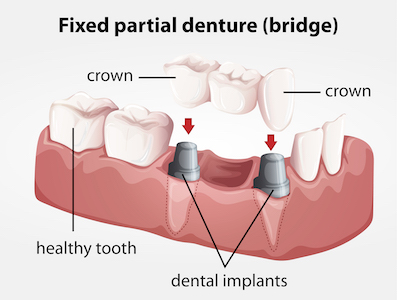 fixed-partial-denture-bridge