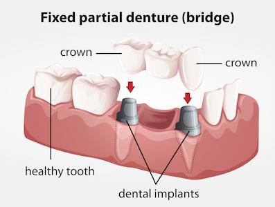 fixed-partial-denture-bridge
