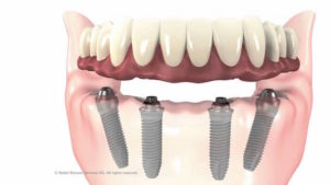 hybrid-dentures-are-anchored-directly-on-top-of-dental-implants-and-can-be-permanently-fixed-in-place-for-removable-for-easy-cleaning