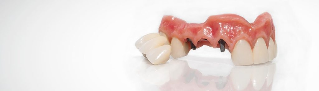 dental-impant-solutionz-boasts-a-high-precision-cad-cam-titanium-denture-substructure-with-and-incredible-life-like-gingival-composite
