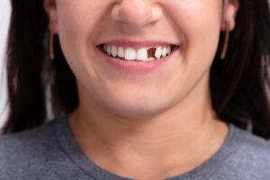 Missing Teeth